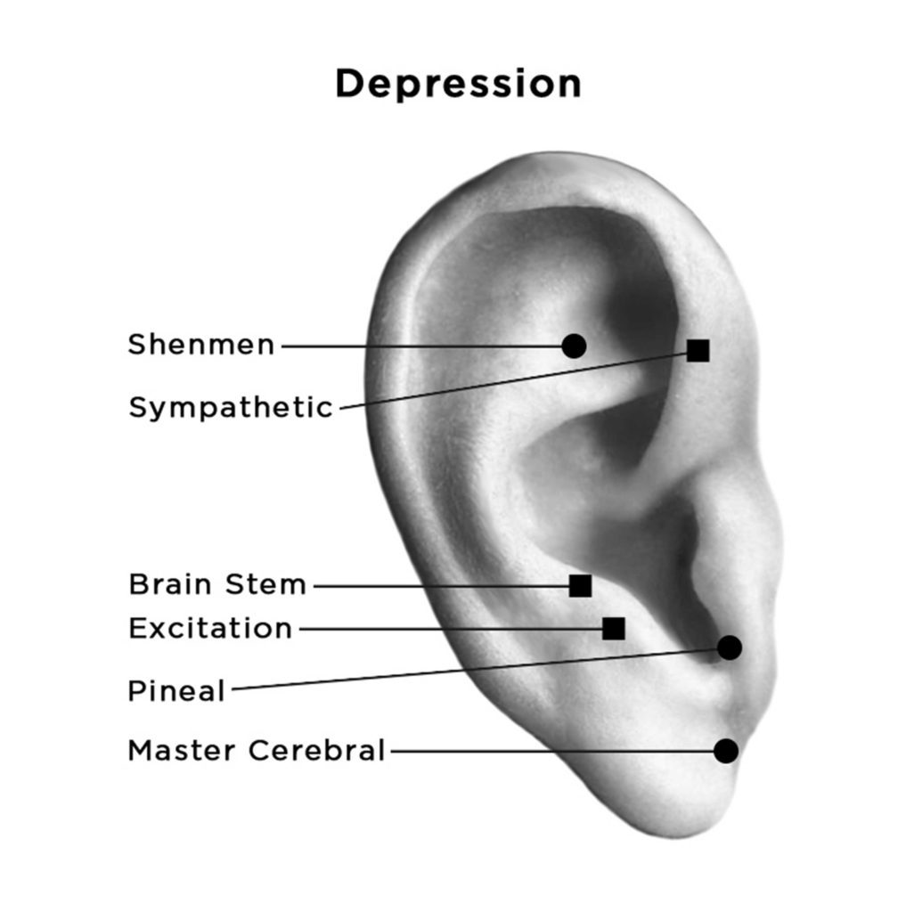 auriculotherapy points for depression