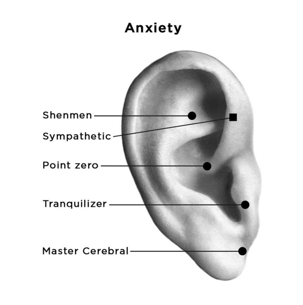 auriculotherapy points for anxiety shown on eear