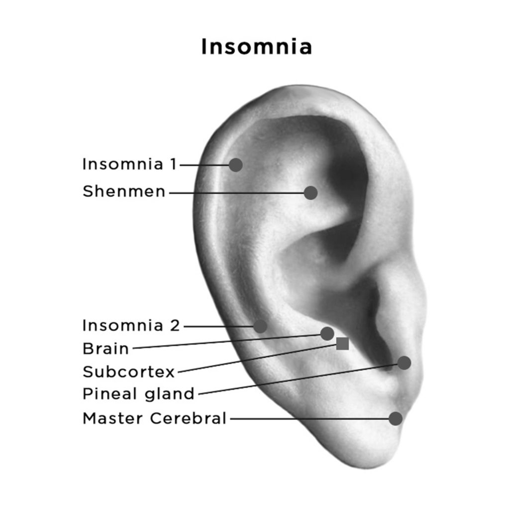 auriculotherapy diagram showing points for Insomnia on ear
