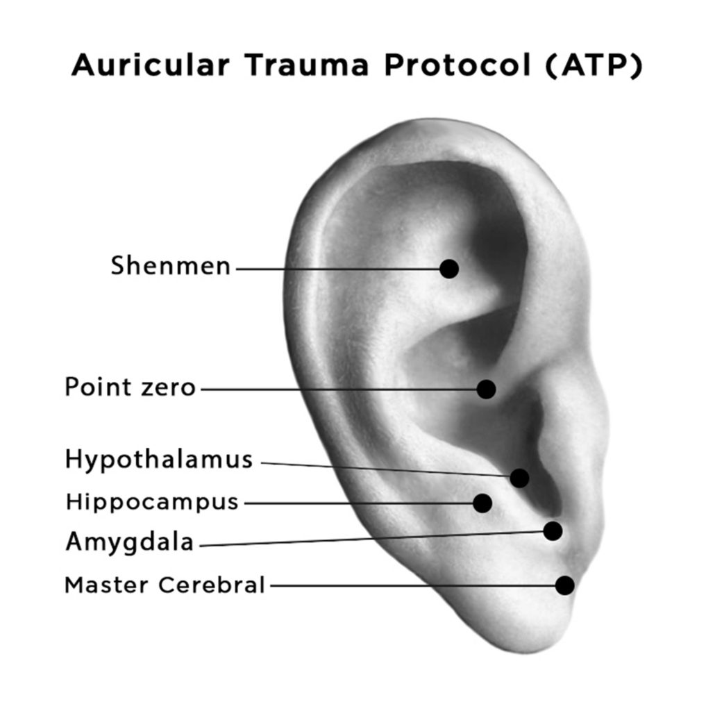 auriculotherapy diagram showing points for PTSD