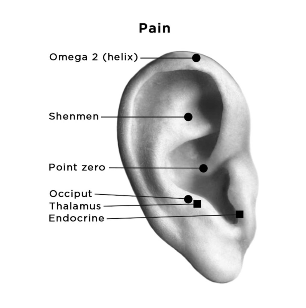 auriculotherapy diagram showing points for Pain