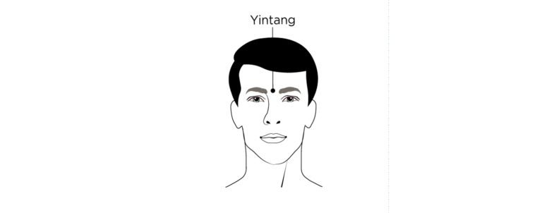 yintang acupoint