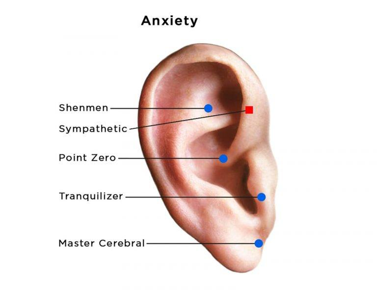 auriculotherapy diagram of ear showing acupoints for anxiety
