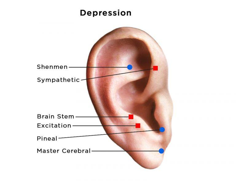 auriculotherapy diagram of ear showing points for depression