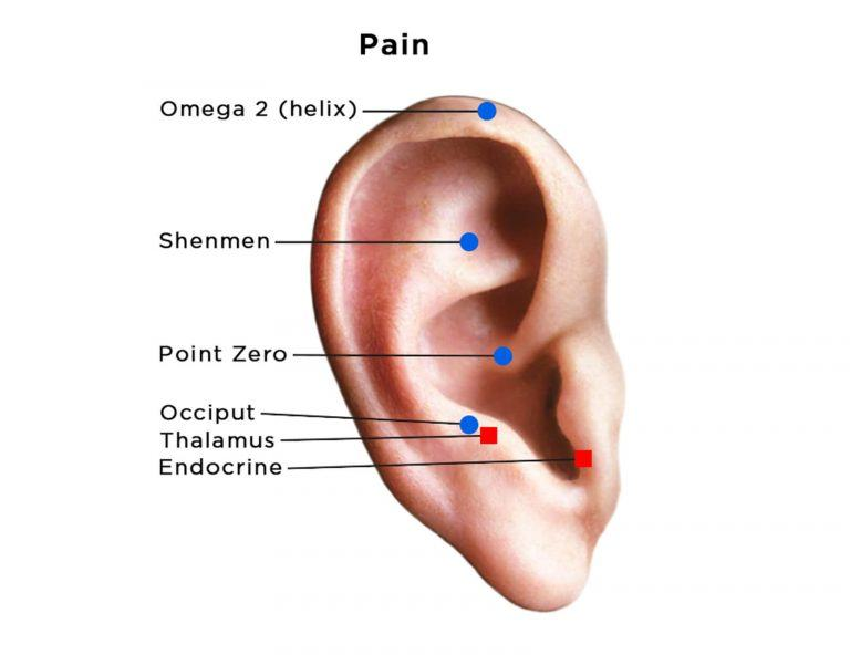 auriculotherapy diagram of ear showing acupoints for pain