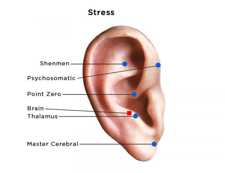 auriculotherapy diagram of ear showing acupoints for stress