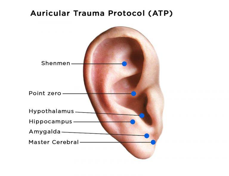 auriculotherapy diagram of ear showing acupoints for